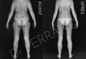 Liposculpture et perte de poids de 14kg et post-lipo. Résultat à 3 mois