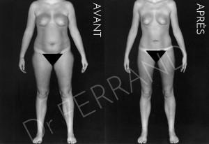 Liposculpture et perte de 14 kg post-lipo. Résultat à 3 mois