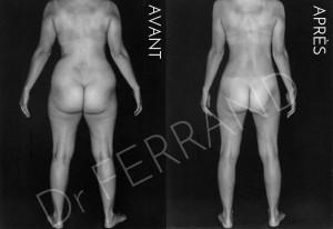 Liposculpture et perte de poids de 8kg post lipo Résultat à 1 an